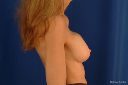 Complex Breast Augmentation Hinsdale, Chicago 2398 - Before Image 2