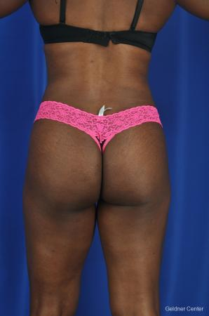 Liposuction: Patient 3 - After Image 4