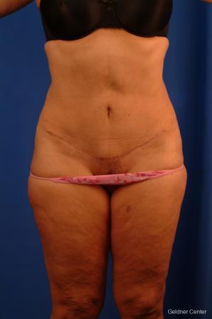 Lipoabdominoplasty: Patient 3 - After Image