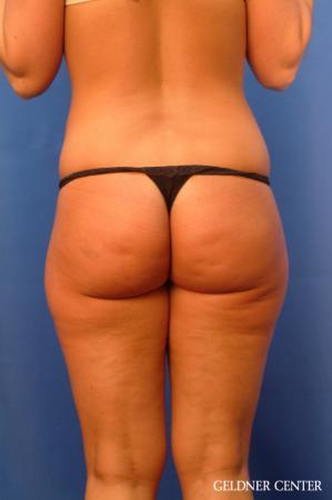 Liposuction: Patient 20 - Before Image 4