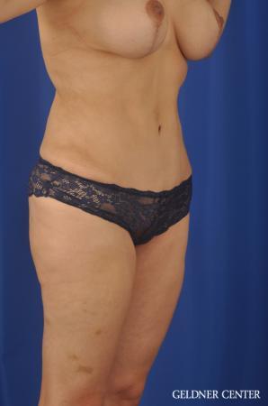 Lipoabdominoplasty: Patient 7 - After Image 2