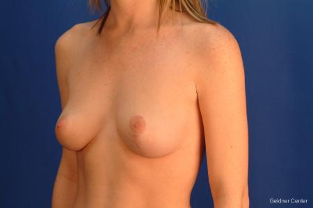 Chicago Breast Lift 2537 -  After Image 4