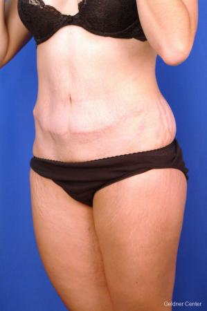 Tummy Tuck: Patient 11 - After Image 4