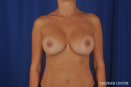 Chicago Breast Augmentation 8746 -  After Image 1