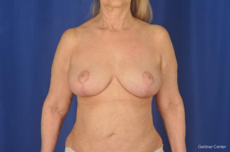 Complex Breast Augmentation: Patient 2 - After Image