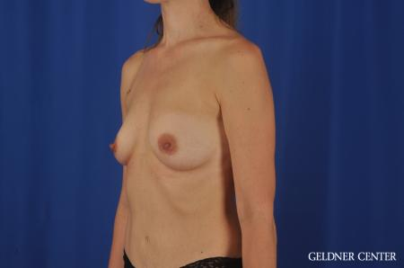 Chicago Breast Augmentation 4002 - Before Image 3
