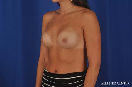 Breast Augmentation Hinsdale, 4290 -  After Image 4