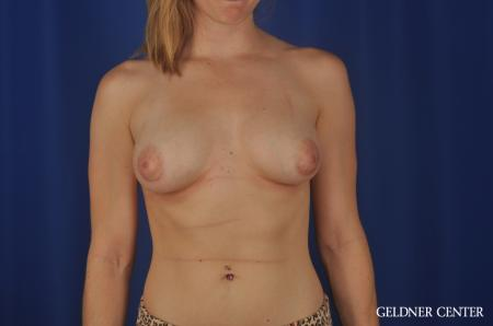 Chicago Breast Augmentation 5468 -  After Image 1
