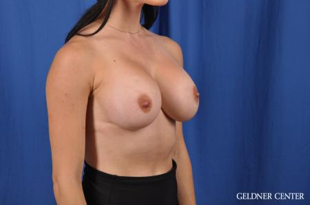 Breast Augmentation: Patient 145 - After Image 3
