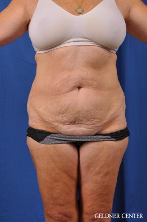 Liposuction: Patient 34 - Before Image 1