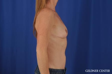 Chicago Breast Augmentation 4004 - Before Image 3