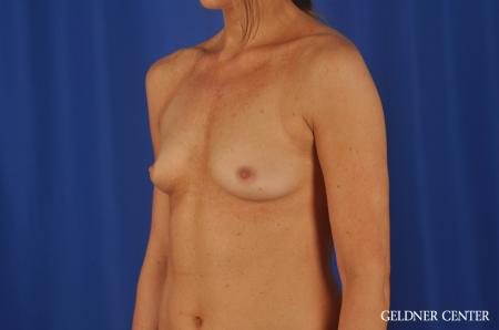 Chicago Breast Augmentation 8745 - Before and After Image 4