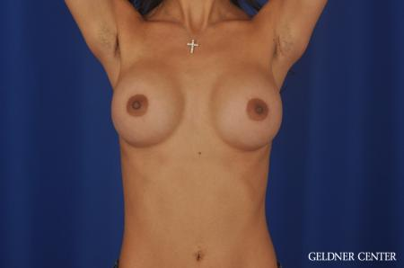 Breast Augmentation Lake Shore Dr, Chicago 5545 - Before and After Image 5