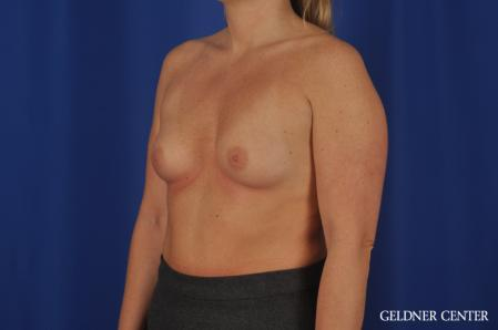Breast Augmentation: Patient 184 - Before and After Image 4