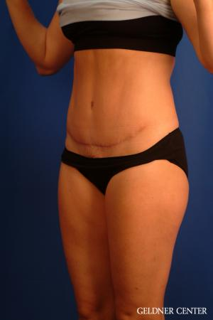 Tummy Tuck: Patient 34 - After Image 4