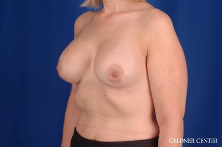 Breast Augmentation: Patient 164 - After Image 4