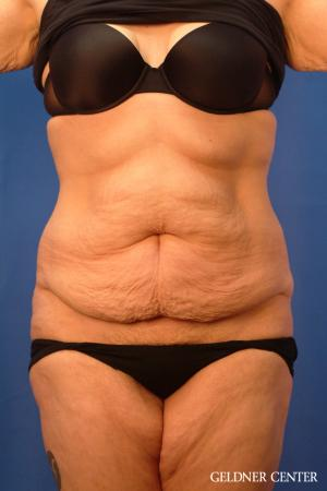 Liposuction: Patient 23 - Before Image 1