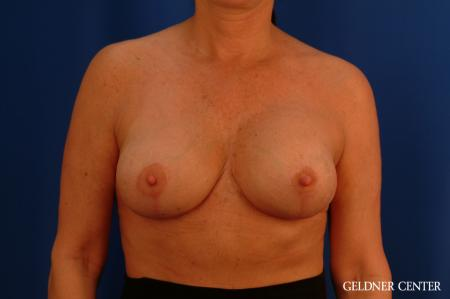 Chicago Breast Lift 2617 -  After Image 1
