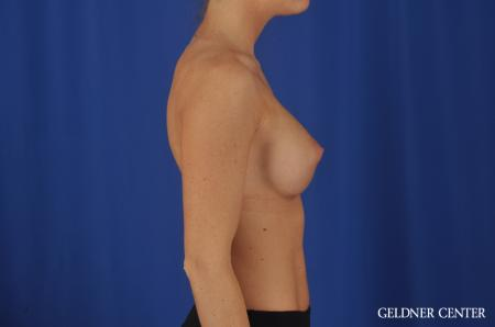 Chicago Breast Augmentation 4292 -  After 3