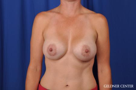 Breast Augmentation Hinsdale, Chicago 5580 -  After Image 1