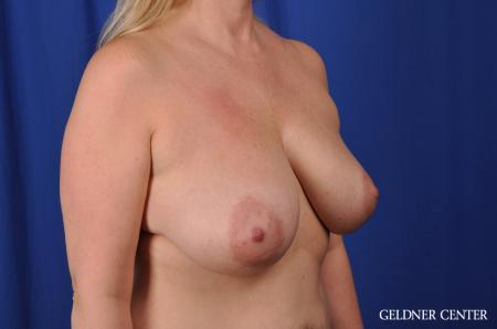 Breast Lift Streeterville, Chicago 8754 - Before Image 3