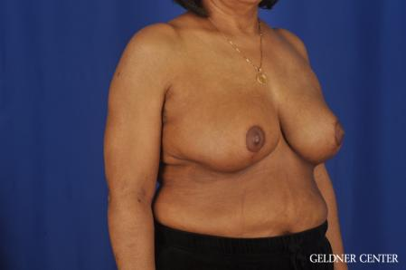 Breast Reduction: Patient 35 - After Image 2