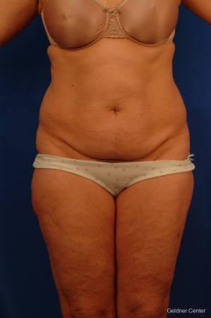 Lipoabdominoplasty: Patient 3 - Before Image