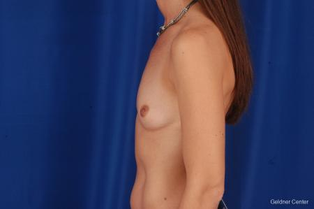 Chicago Breast Augmentation 2294 - Before Image 4