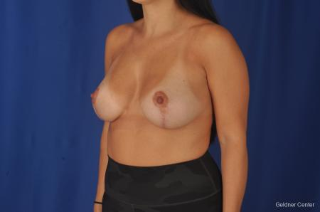 Breast Augmentation: Patient 78 - After Image 5