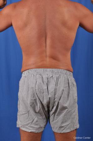 Liposuction For Men: Patient 5 - After 4