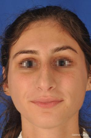 Rhinoplasty: Patient 4 - Before Image 1