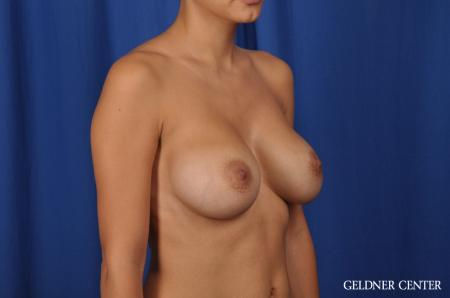 Breast Augmentation: Patient 134 - After 3