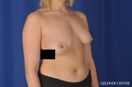Breast Augmentation: Patient 147 - Before Image 2