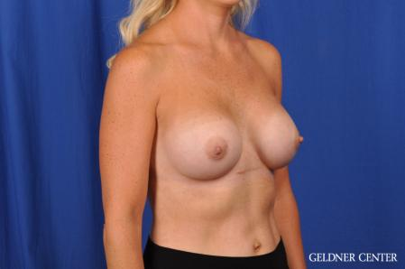 Breast Augmentation: Patient 186 - After Image 2