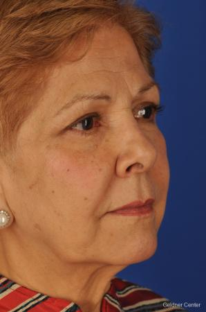 Chicago Brow Lift 2062 - Before Image 3