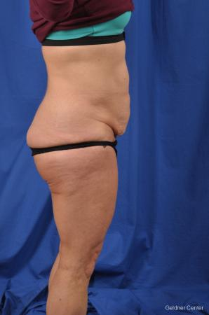 Abdominoplasty: Patient 7 - Before Image 3