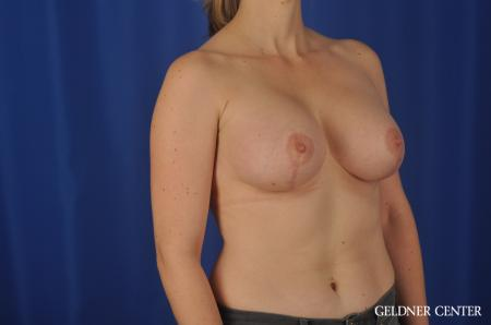 Chicago Breast Lift 4289 -  After Image 2