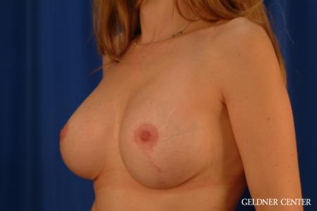 Complex Breast Augmentation: Patient 39 - After Image 4