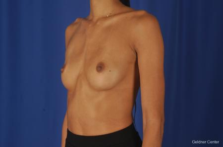 Breast Augmentation: Patient 84 - Before and After Image 4