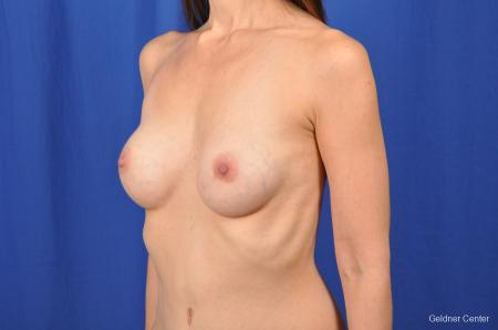Chicago Breast Augmentation 2376 -  After Image 4