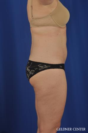 Tummy Tuck: Patient 22 - Before Image 3
