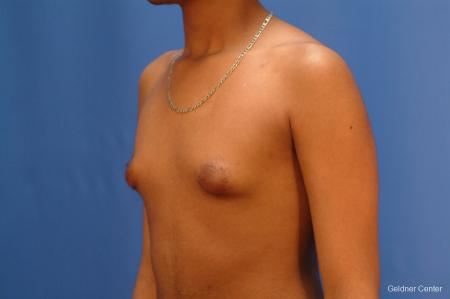 Gynecomastia: Patient 5 - Before and After Image 5