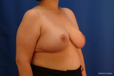 Breast Reduction Streeterville, Chicago 2522 -  After Image 3