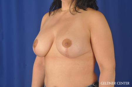 Complex Breast Augmentation: Patient 32 - After Image 4
