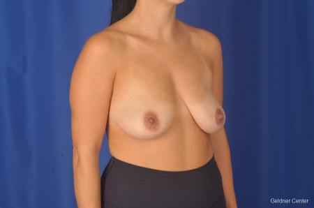 Breast Augmentation: Patient 78 - Before Image 3