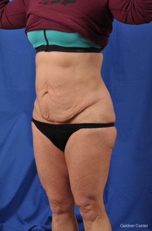 Abdominoplasty: Patient 7 - Before and After Image 4