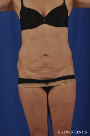 Chicago Abdominoplasty 11854 - Before Image 1