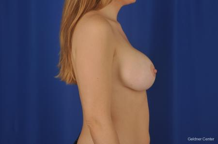 Chicago Breast Augmentation 2374 -  After Image 2