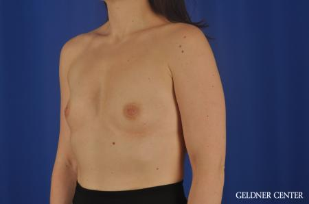 Chicago Breast Augmentation 8760 - Before and After Image 4