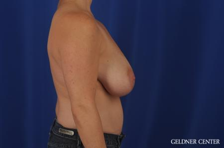 Breast Reduction Hinsdale, 4287 - Before Image 3